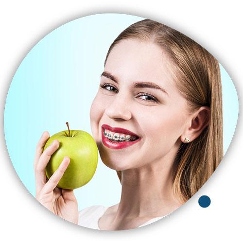تغذیه در طول درمان ارتودنسی