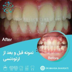 درمان دندان نهفته