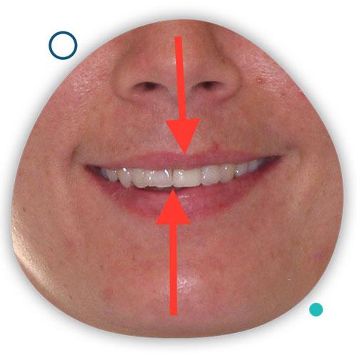 درمان ناهماهنگی خط وسط دندان