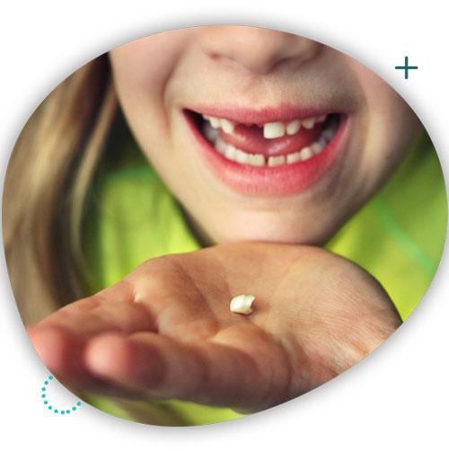 محافظت از دندان شیری